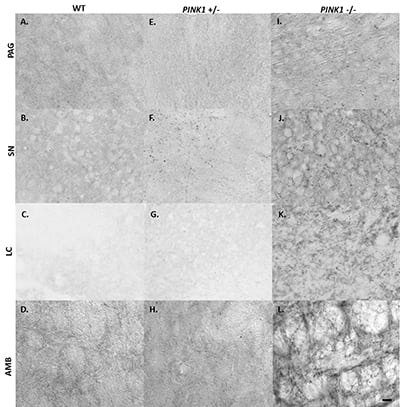 Photomicrographs of insoluble aSyn inclusions