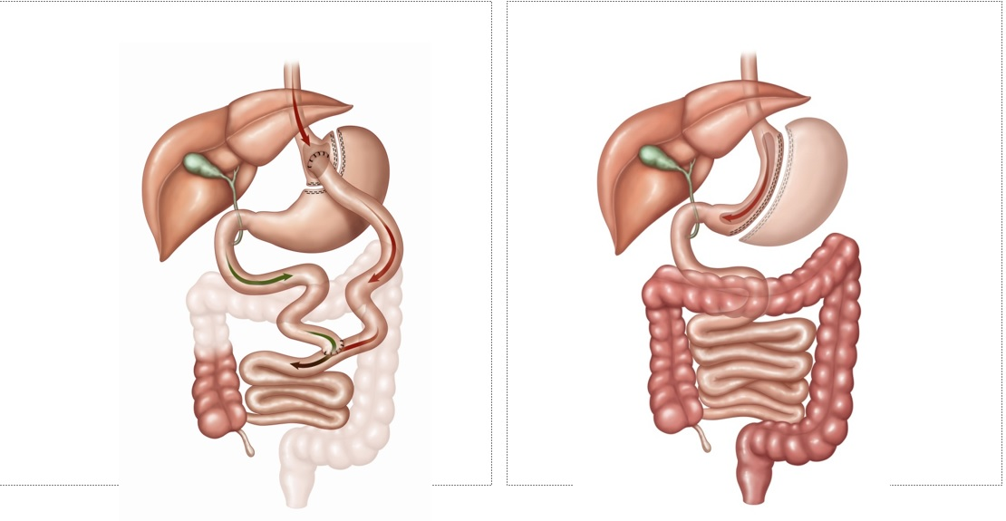 The current state of bariatric surgery - Department of Surgery