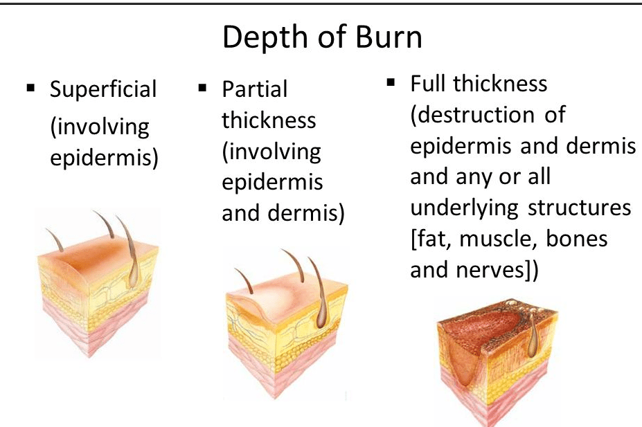 outcome analysis of burns patients in bicu Prime aims to demonstrate through neurocognitive assessment that bicu patients will have a degree of neurocognitive dysfunction following a major burn, that this neurocognitive dysfunction is due to an underlying neuroinflammatory process by fmri neuroimaging techniques, and that the neurocognitive.